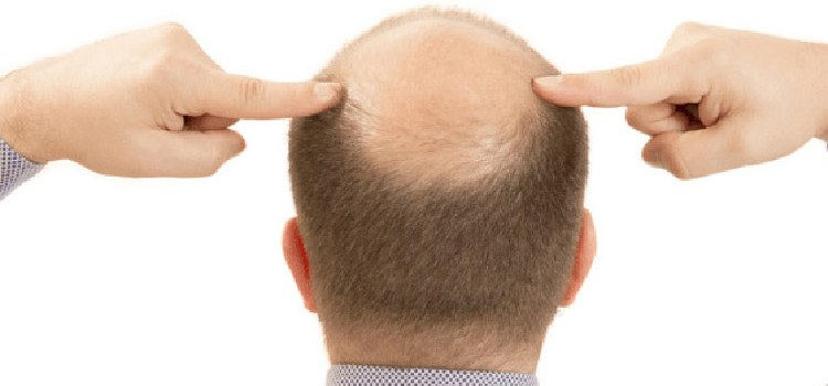 What is androgenetic alopecia