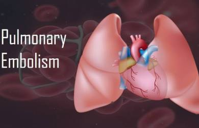 Causes of Pulmonary Thromboembolism