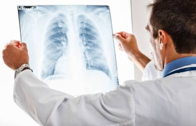 How Contagious is Bronchitis