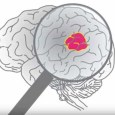 What is a Glioma Tumor