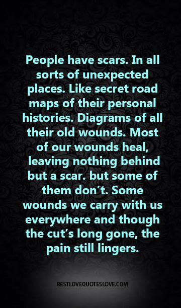 People have scars. In all sorts of unexpected places. Like secret road maps of their personal histories. Diagrams of all their old wounds. Most of our wounds heal, leaving nothing behind but a scar.