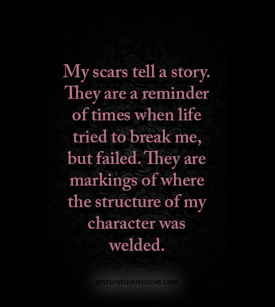 My scars tell a story. They are a reminder of times when life tried to break me, but failed. They are markings of where the structure of my character was welded.