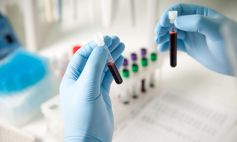 τεστ αίματος στρες