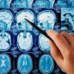 Good Brain, Bad Brain: Parkinson's Disease