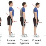 What Is A Posture Corrective Brace?
