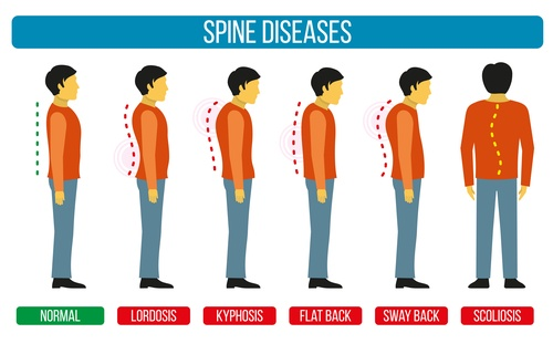 lordosis of the lumbar spin