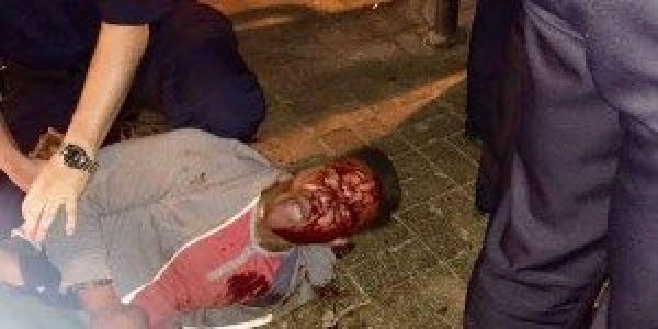 Martese Johnson, a junior at the University of Virginia, was injured by police officers on the night of St. Patrick's Day. Image courtesy the Huffington Post.
