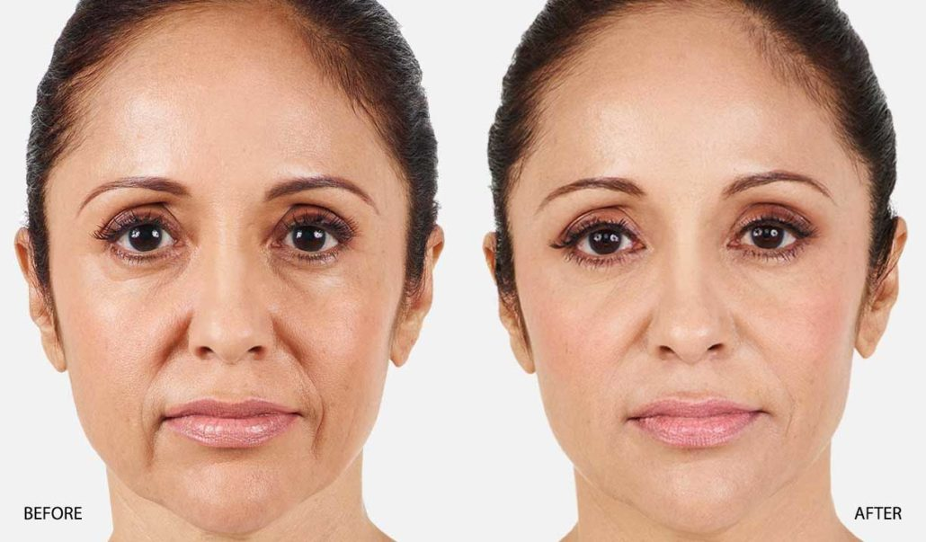 Pictures Nasal Folds Fillers