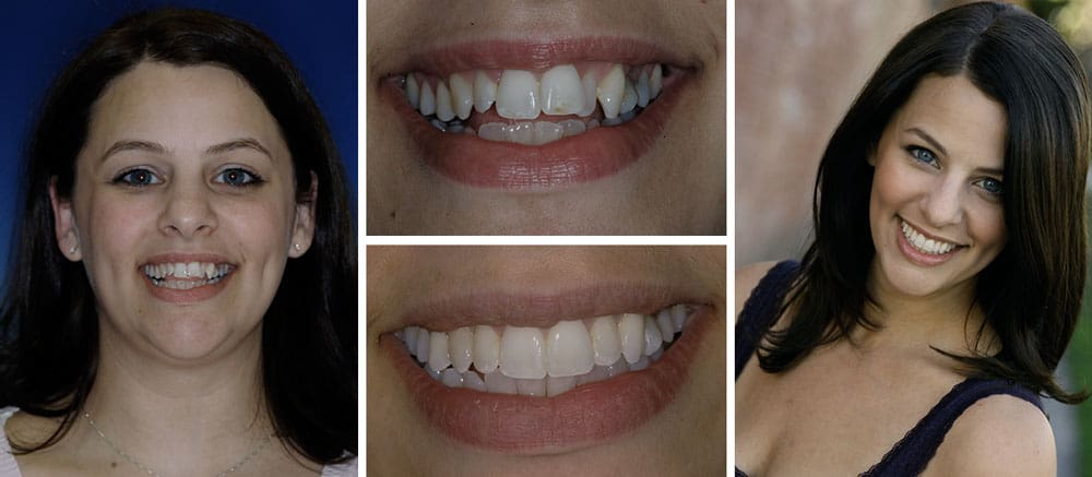 Danielle - before and after smile - Beth Snyder, DMD