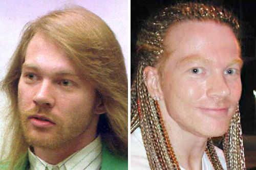 Axl Rose plastic surgery gone wrong