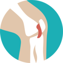 Knee Illustration