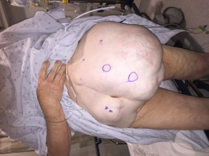 After Multiple Failed Hernia Repairs