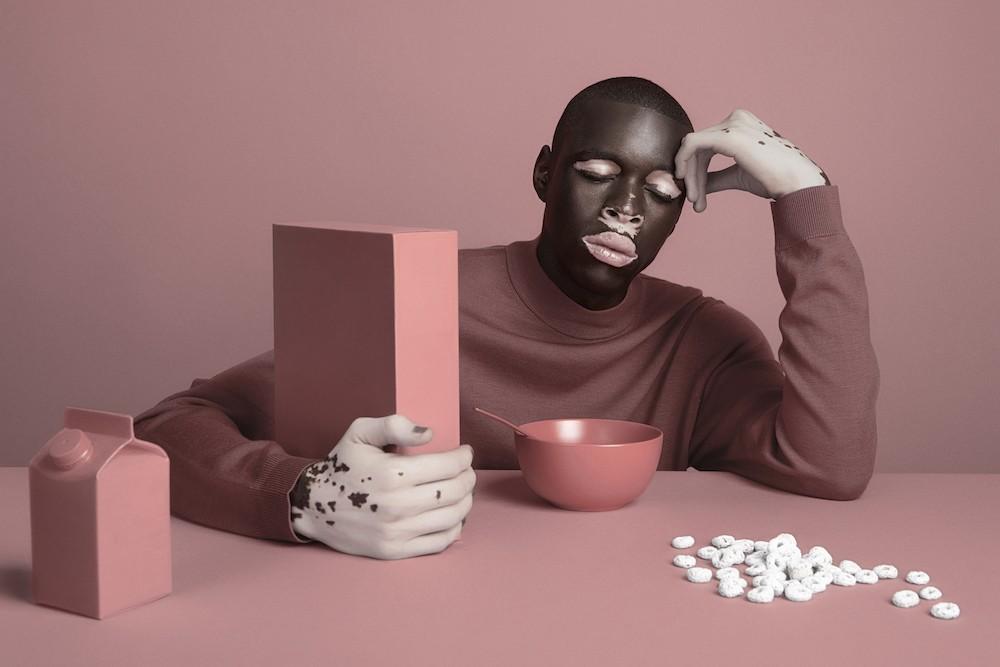 photo  le vitiligo photographie