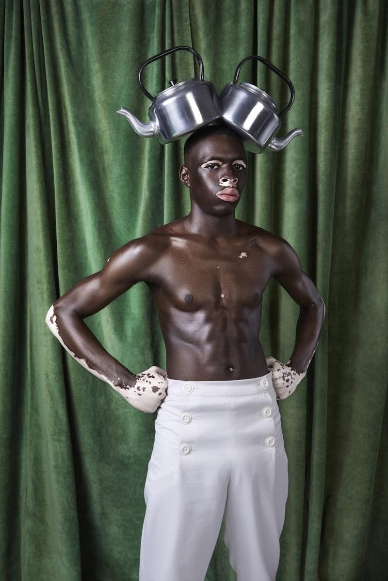 le vitiligo vu par le photographe Justin Dingwall