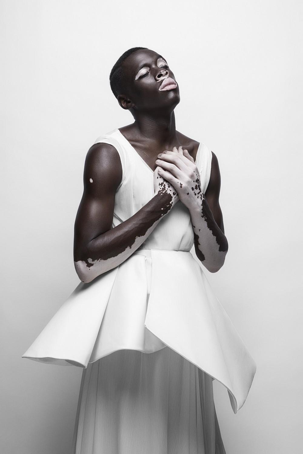 Moostapha Saidi Justin Dingwall  vitiligo
