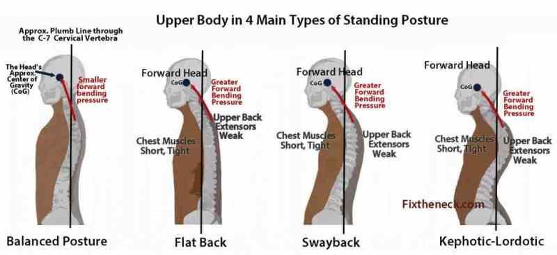 lat-posture-view img