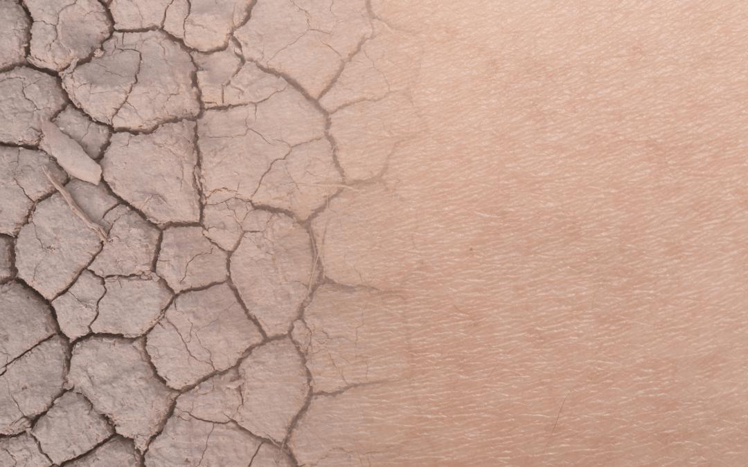 Een Droge Huid… Wat is de juiste skinroutine?