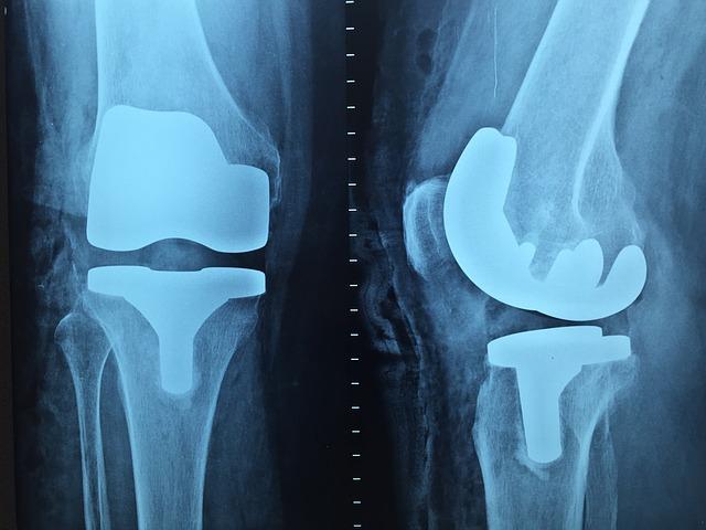 Unfallversicherung – Was bedeuten Gliedertaxe und Invaliditätsgrad?