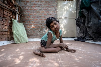 Child in Bhopal harmed by Union Carbide's poisons