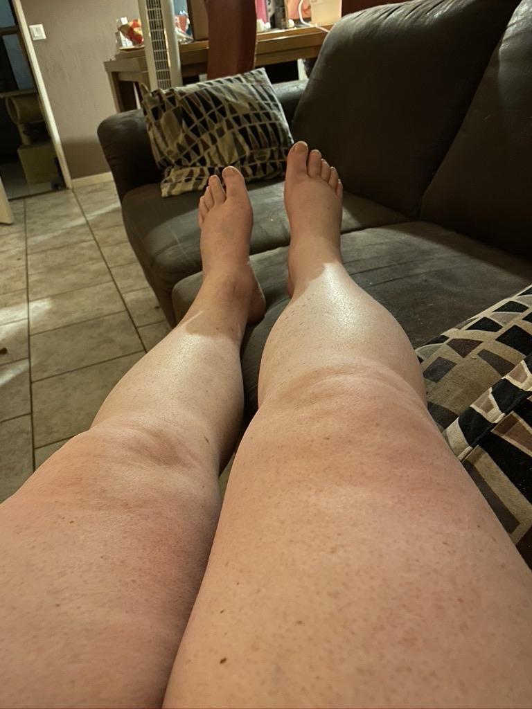 beide oedeem benen
