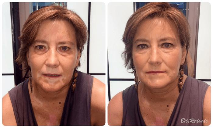 Maquillaje Corrección Vitíligo