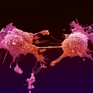 Profilaktyka raka piersi – wykład