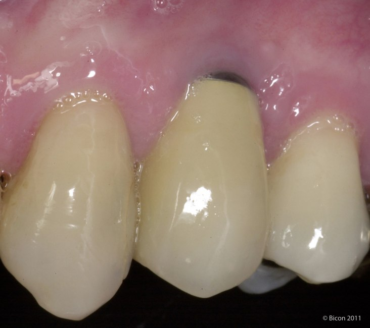 An Aesthetic Resolution Of A Metallic Gingival Margin
