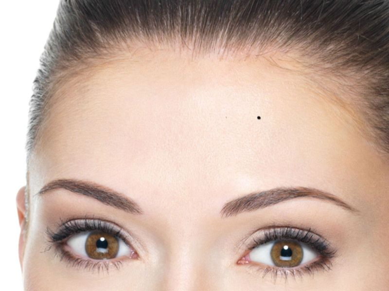 forehead-Meaning of moles