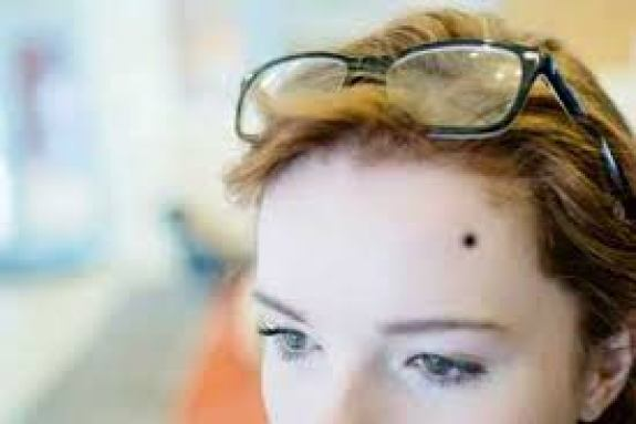 Mole on the Forehead - Mole Meaning