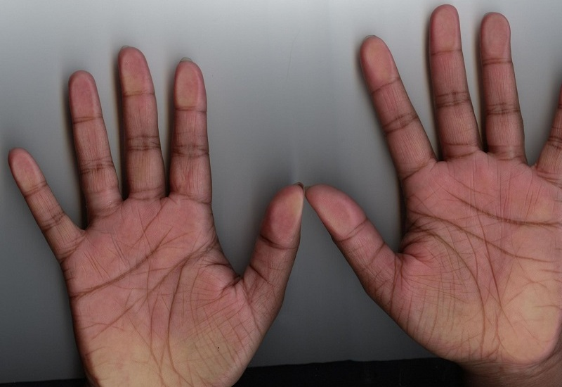 Letter X On Palm Meaning - Here Is What It Reveals About