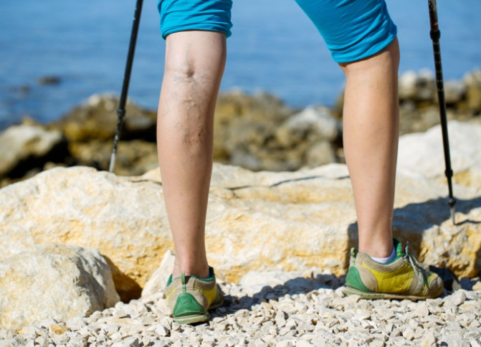 compression socks varicose veins