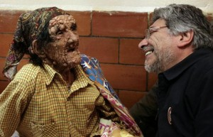 1274 paraguayan presiden 787325i 1 300x193 - What Is Leprosy?