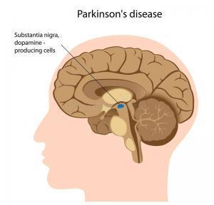 14069 parkinson s disease 22934339 300x288 - The Molecular Mechanisms That Causes Parkinson's Disease