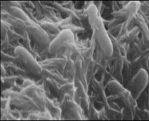 d3 9 300x243 - The Health Benefits Of Bacteria In The Large Intestine