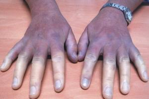 14981 periferik damar 300x200 - What is Peripheral Artery Disease?