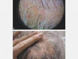 15169 sikatrisyel alopesi 300x225 - What is Cicatricial Alopecia?