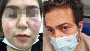 Almanya'da Türk baba ve kızına polis şiddeti!