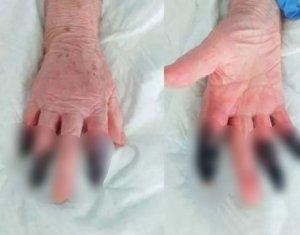 İtalya'da Koronavirüs Hastası Kadın Kangren Oldu, 3 Parmağı Kesildi