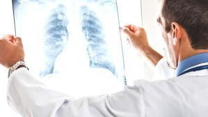 Tıbbi Onkoloji Uzmanı Prof. Dr. Canfeza Sezgin'den önemli uyarı: Günde 1 paket sigara içiyorsanız bu taramayı yaptırmanız şart