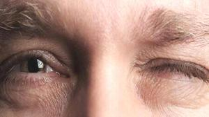 Göz seğirmesinin nedenleri ve tedavisi