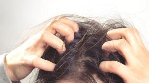 Saç derisi kaşıntısına karşı 5 doğal çözüm