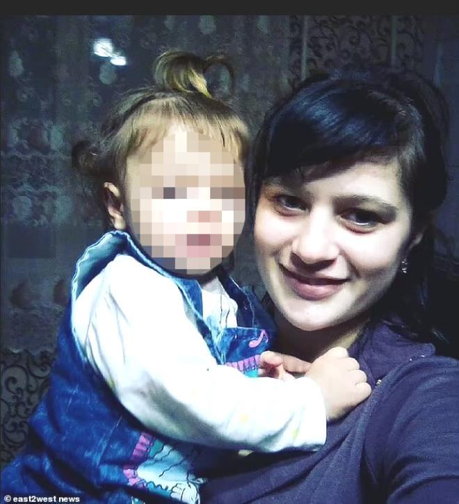 Küçük kız emekleyerek kaynar suyun içine düştü! Tıp öğrencisi annenin çözümü çocuğu canından etti