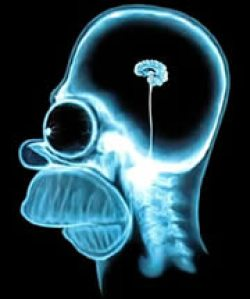 An example of an underdeveloped brain :)