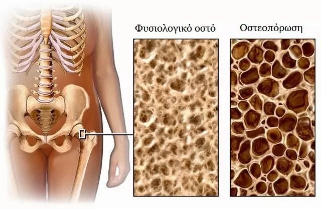 osteoporosis11