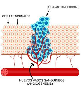 Ingravidez contra el cáncer 1