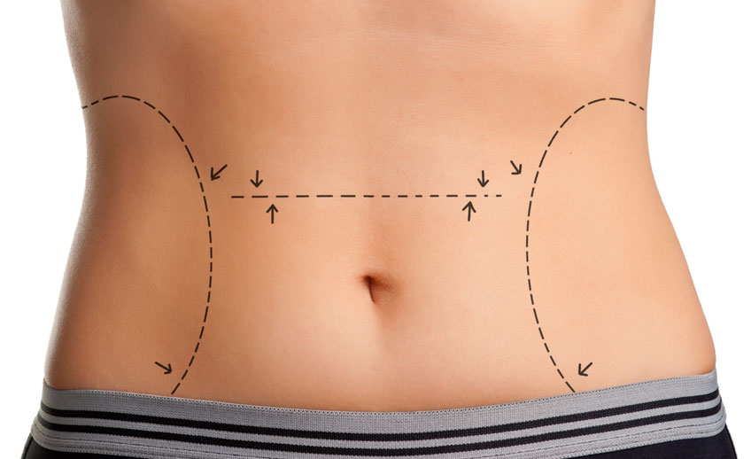 Procedimientos quirúrgicos - Contorno corporal