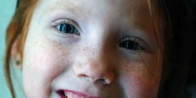 taches noires sur les dents
