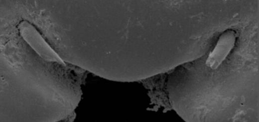 Ηλεκτρονικό μικροσκόπιο σάρωσης - Κεφάλι σκαθαριού