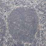 Ιαπωνία: Μελέτη βλαστικών κυττάρων σε ανθρώπους υπό έγκριση