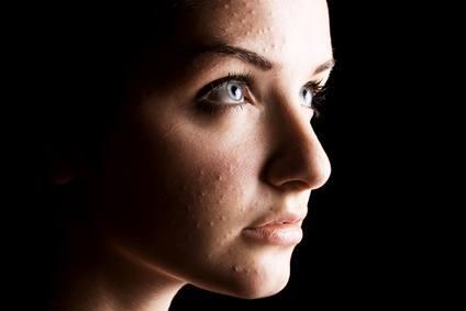 Acné emocional (psicología del acné)